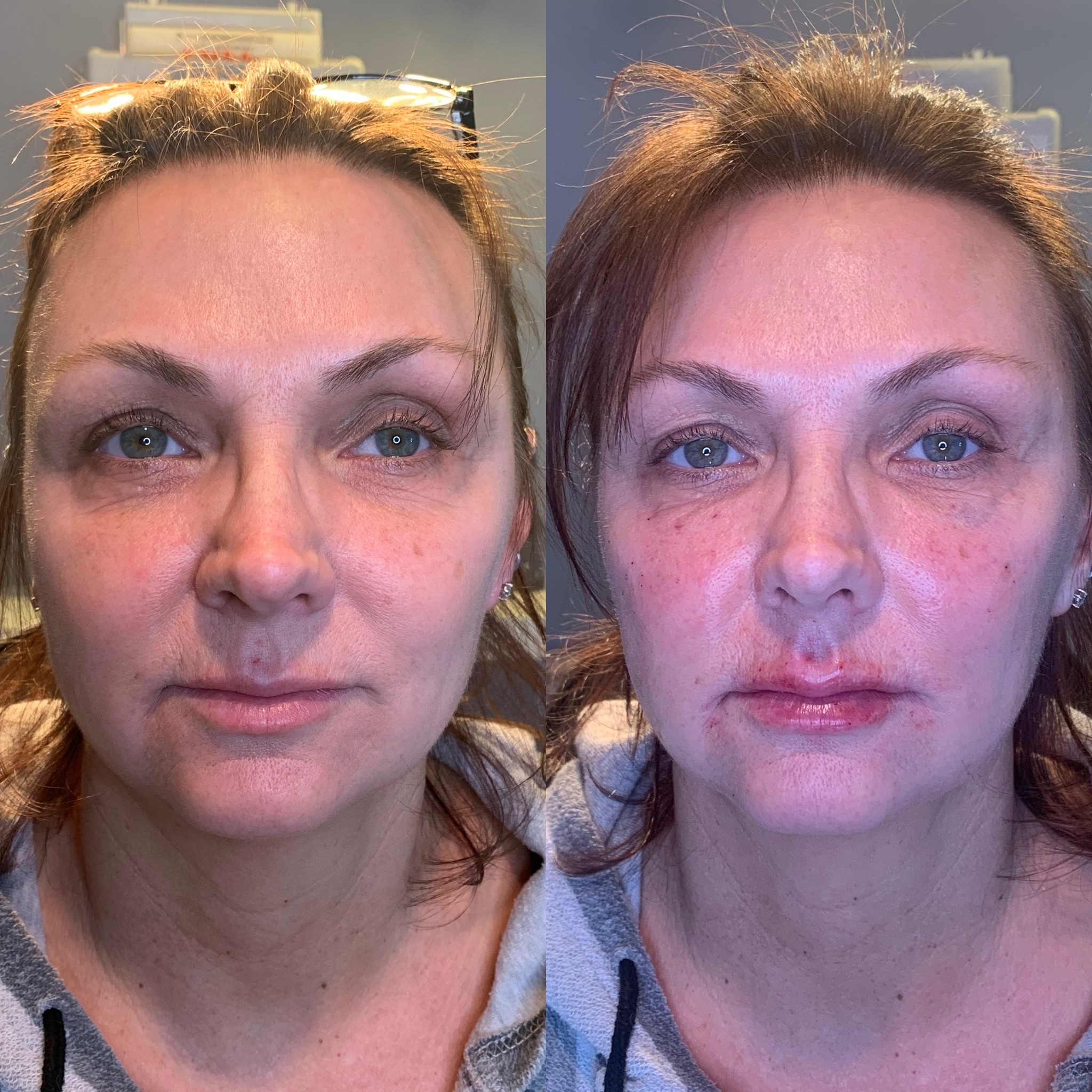 The Injectable Facelift