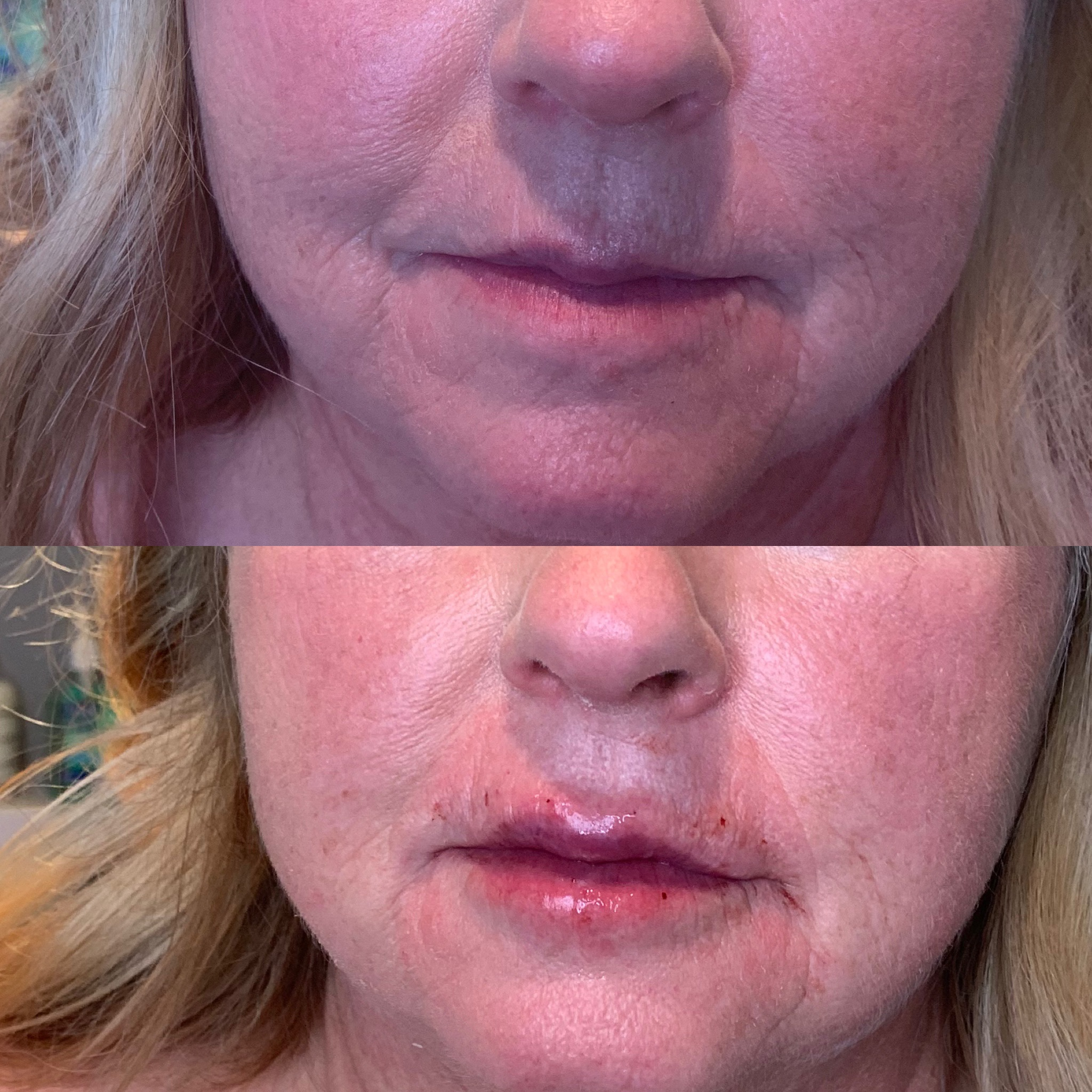 Lips with Restylane Silk