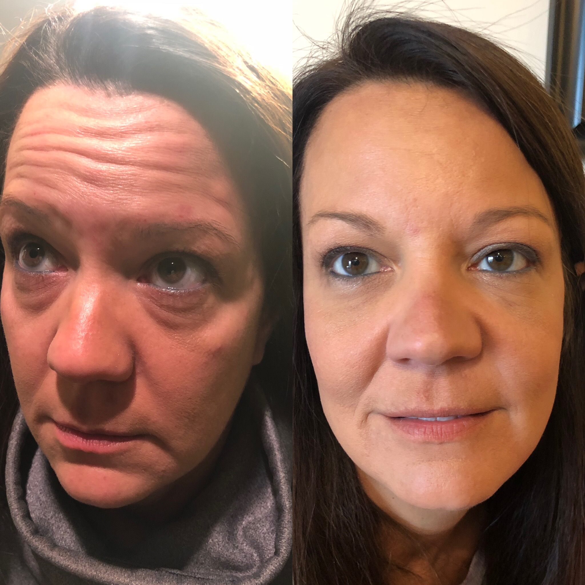 Forehead, frown line, & crows feet with Dysport; Tear Troughs with Restylane-L