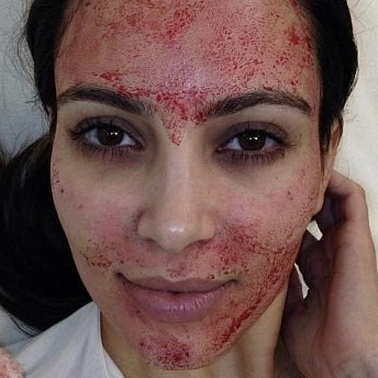 "The ""True Blood Facial"" - Microneedling with the added benefits of Platelet-Rich Plasma (PRP"