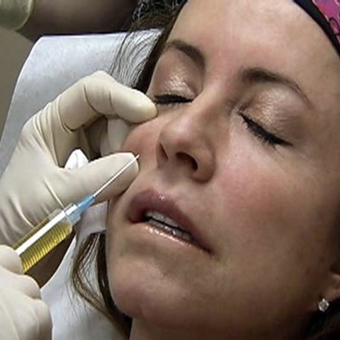"The ""True Blood Facelift"" - Enhancing your dermal filler injections by adding Platelet-Rich Plasma (PRP)"