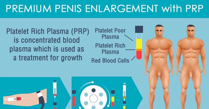 Penis Enlargement and Male Enhancement - Using growth factors from your own blood to enlarge the penis, restore blood flow to ease symptoms of erectile dysfunction, and help treat Peyronie's Disease.