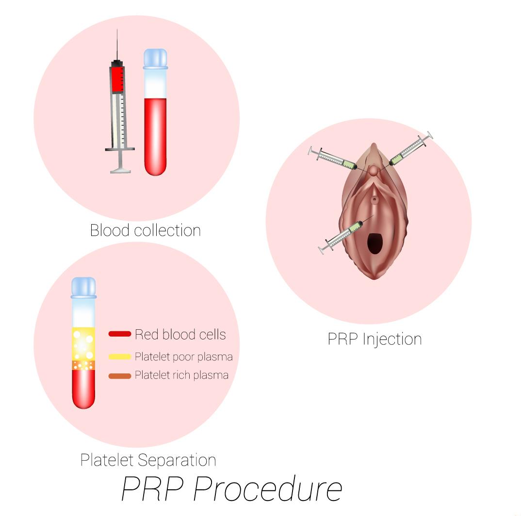 Prp for Female Enhancement