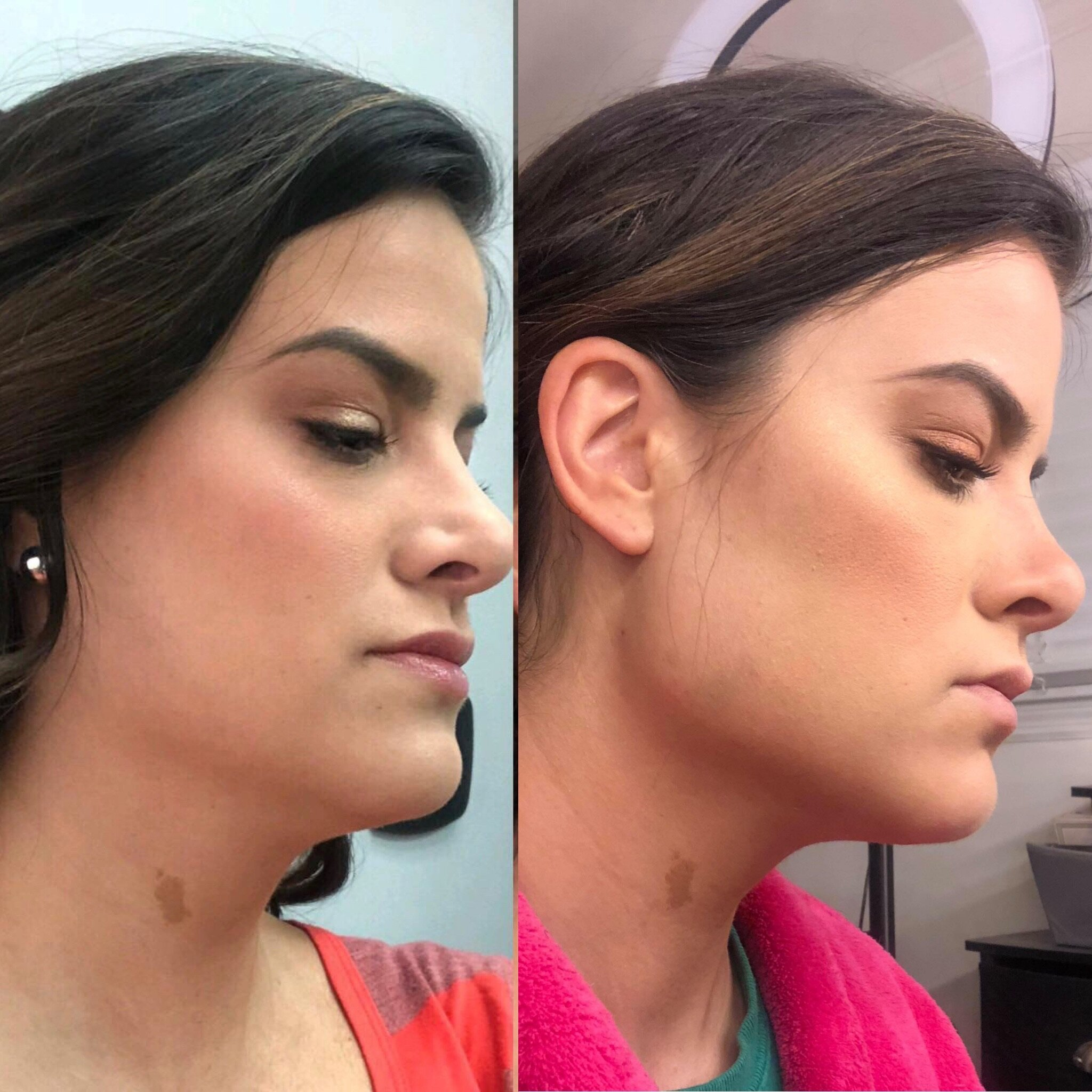 The Complete Jaw Line Package - One of out most comprehensive packages! We use lifting threads, smooth threads, and Radiesse filler to pull the skin tight around the jaw, build collagen, and use filler to add definition! Seperately, these items would cost $2,200, but combined as a package, you'll only pay $1,500!