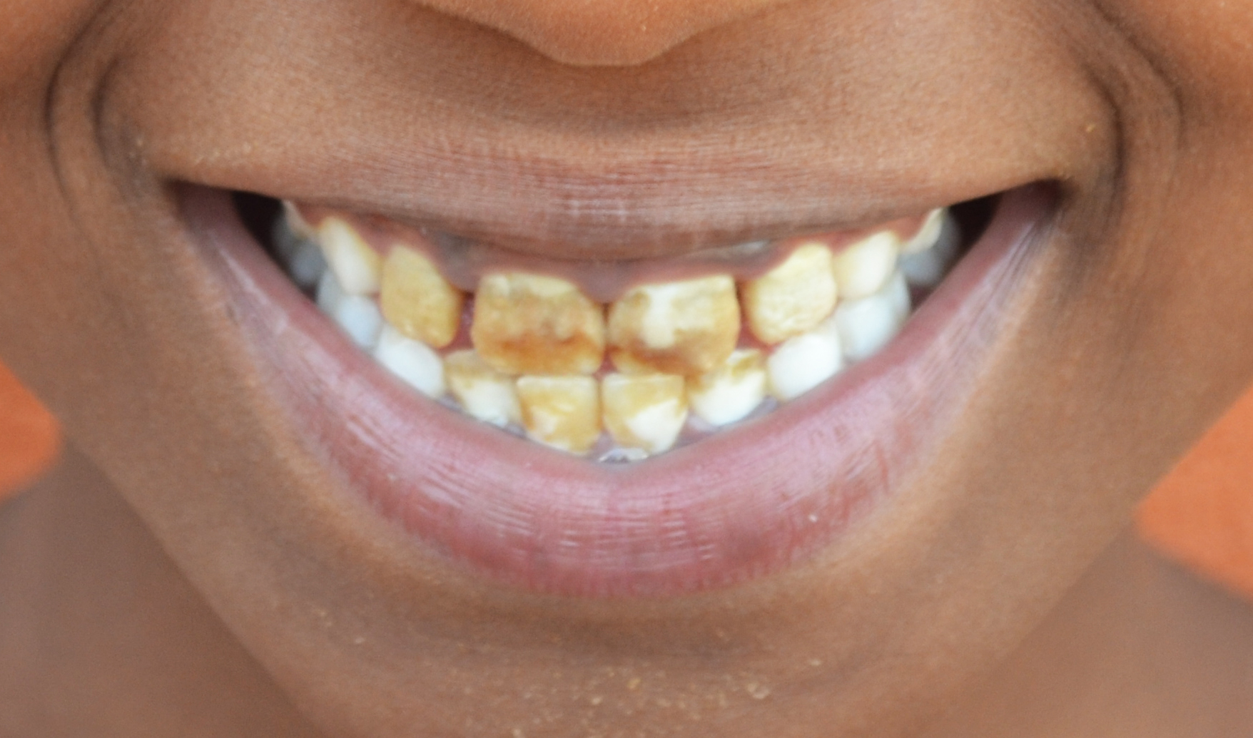 *Angie's teeth are brown and broken because of high fluoride.