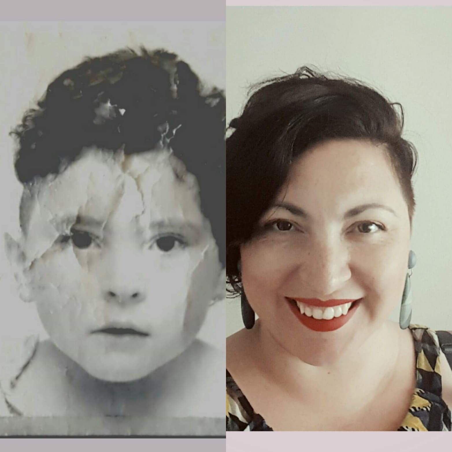5-year-old ill self with shaved head, prepped and ready for surgery.  vs  happy adult self on the 30-something anniversary of said surgery.