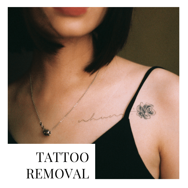 Menu-Tatoo Removal-sq-min.png