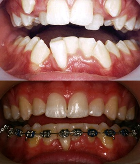Before and towards end of treatment