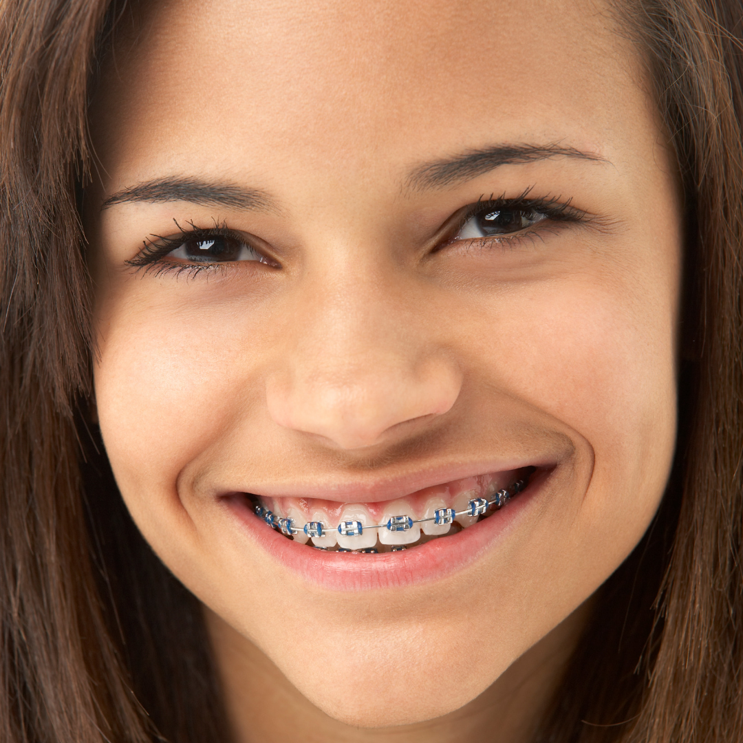 Jawsmile Specialist Orthodontics patient centred care