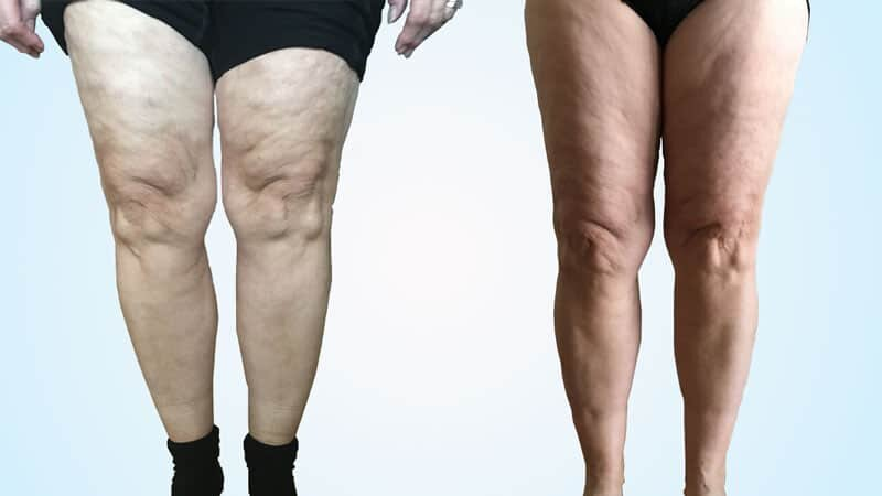 Cellulite Dls Clinic