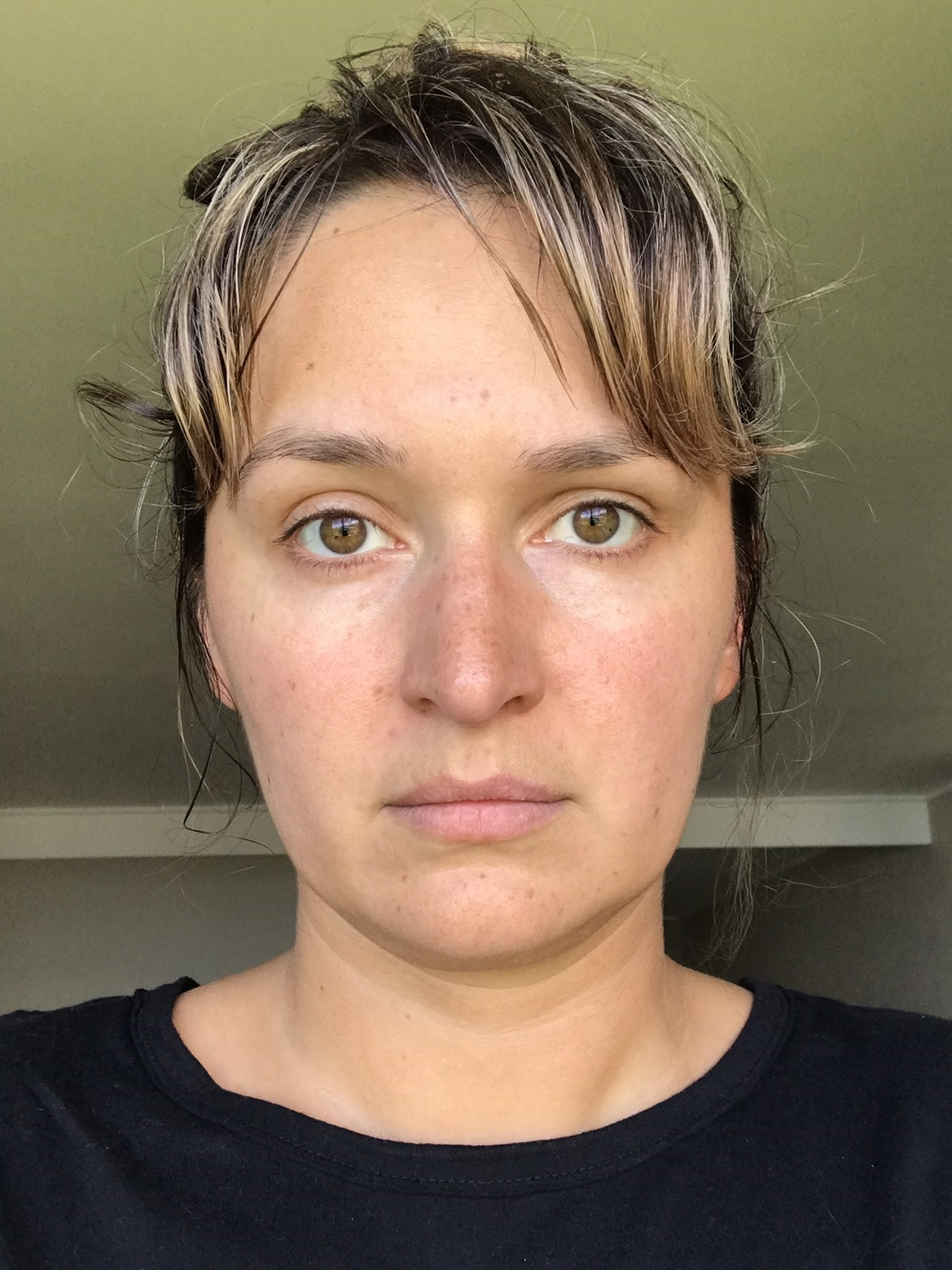 28 September 2018 :  My skin felt dry, flakey and rough. Redness was also an issue.