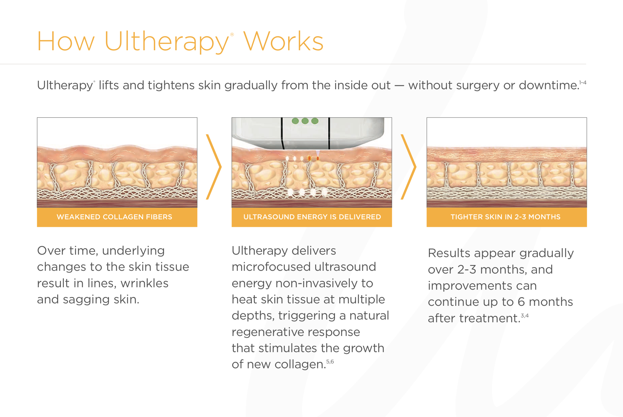 How Ultherapy Works