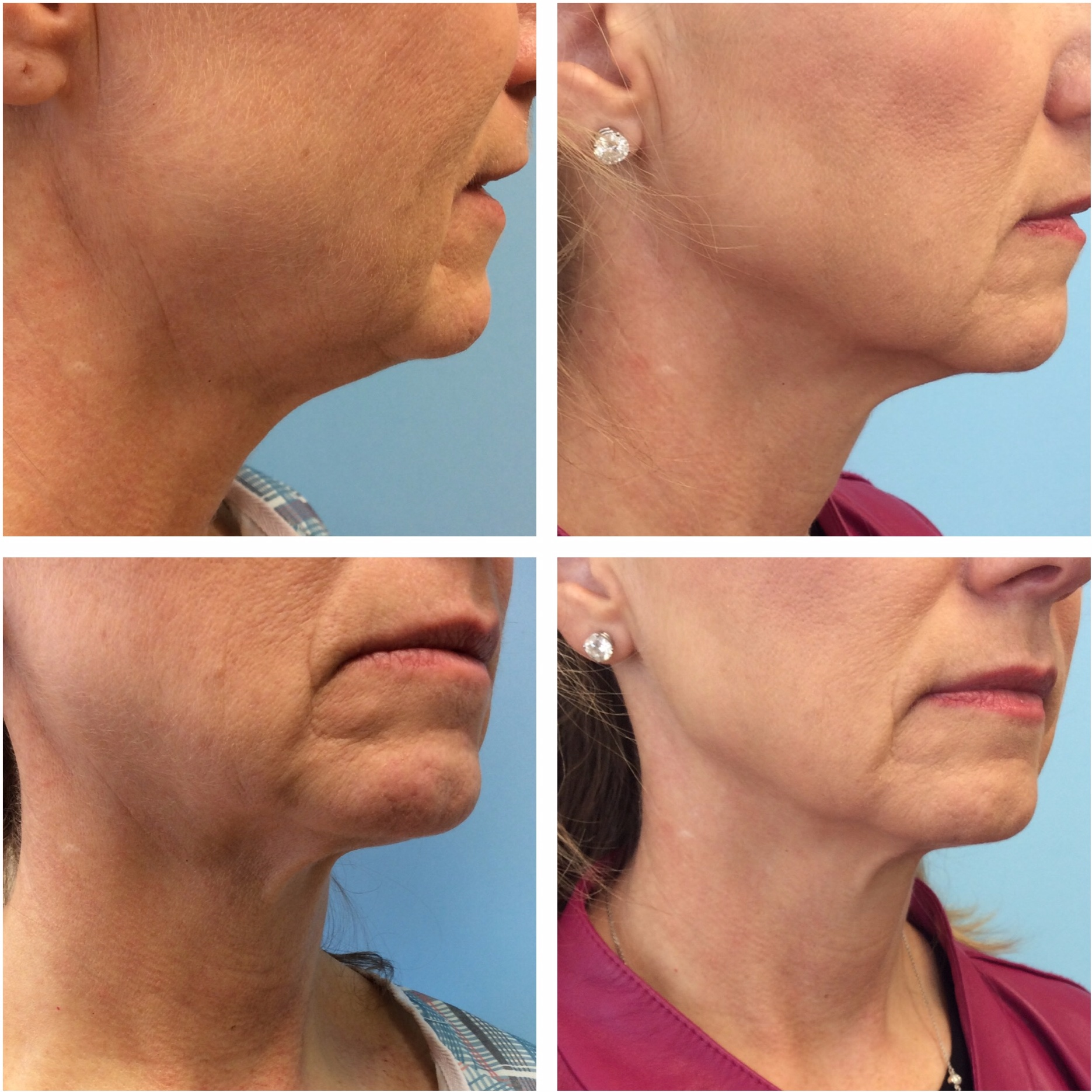 Left: Before Treatment Right: 3 months after one single Ultherapy treatment to the lower face and upper neck