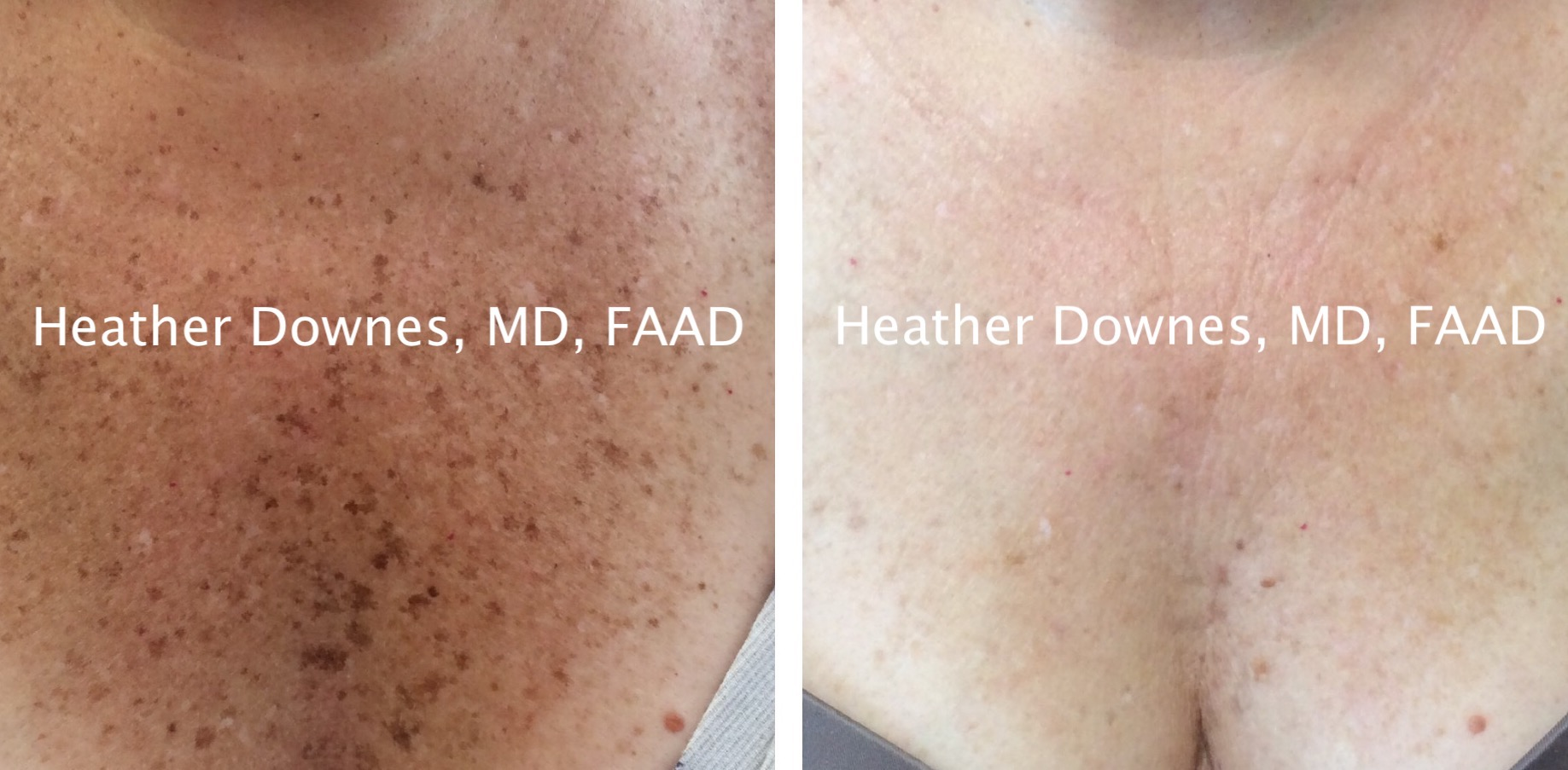 Left: Before treatment  Right: After two IPL treatments