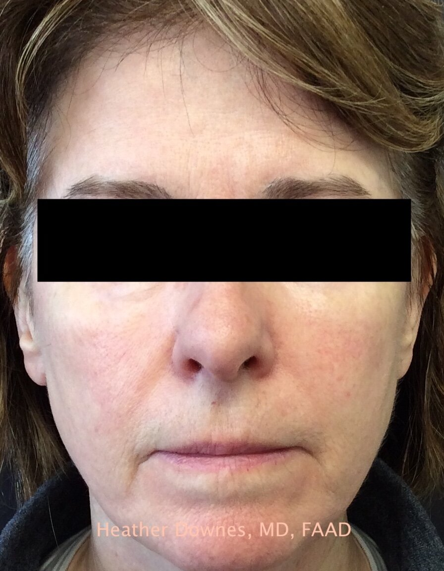 Vbeam Pulsed Dye Laser Lake Forest Dermatology Bannockburn