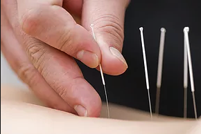 dry-needling.png