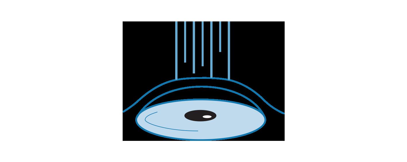 Icon illustrating PRK eye treatment.