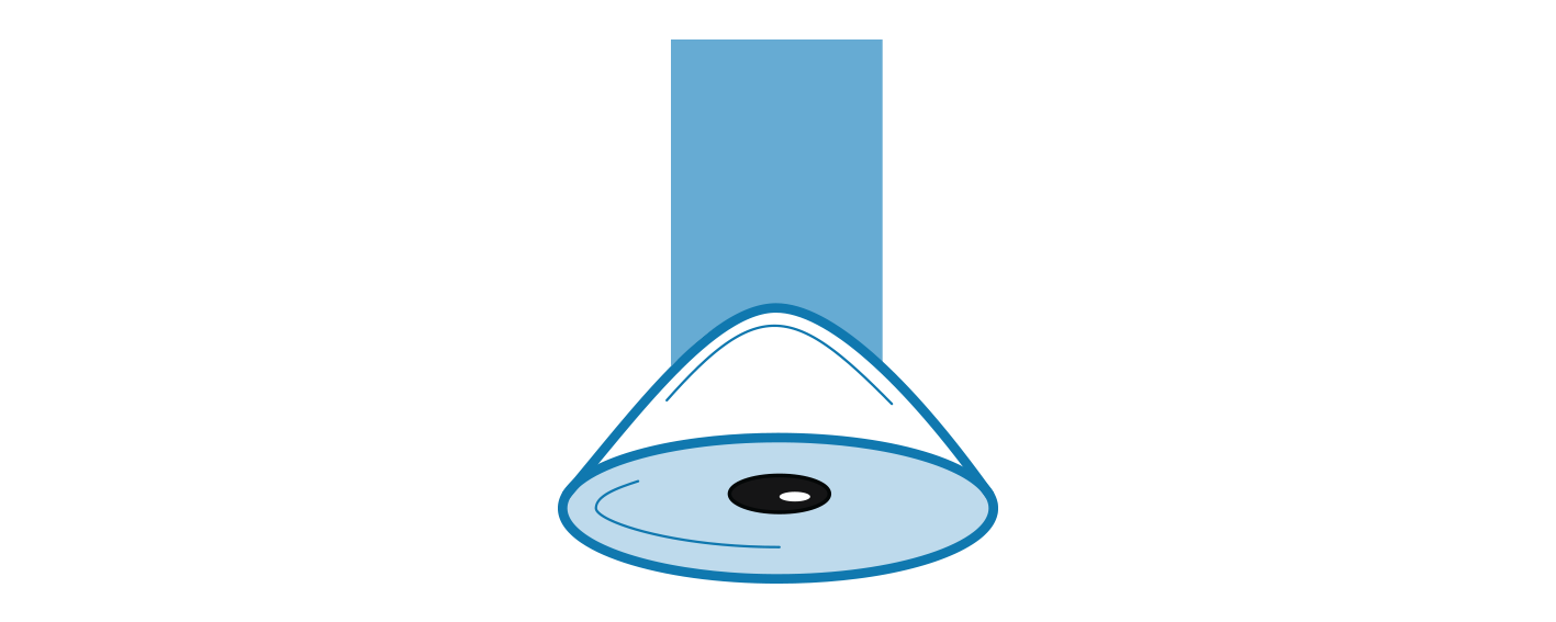 Icon illustrating Keratoconus Cross Linking treatment.