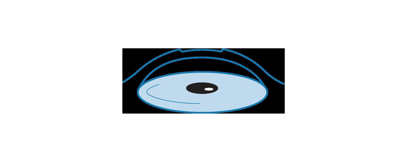Illustration of Recurrent Corneal Erosion Syndrome.