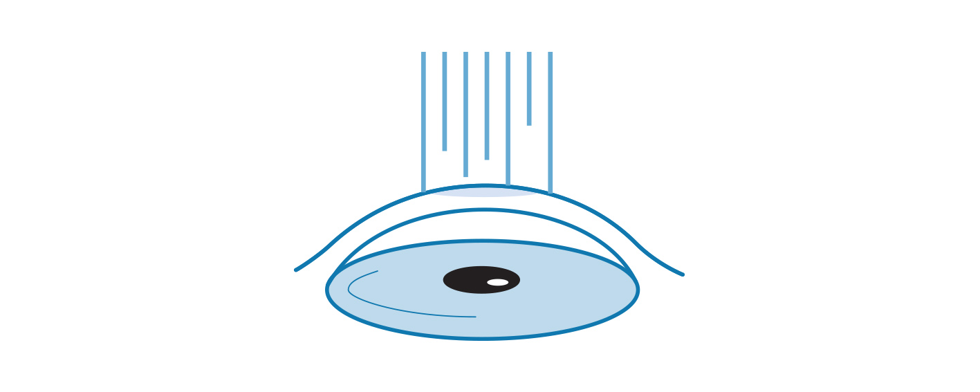 Illustrated Icon of Corneal Scarring.