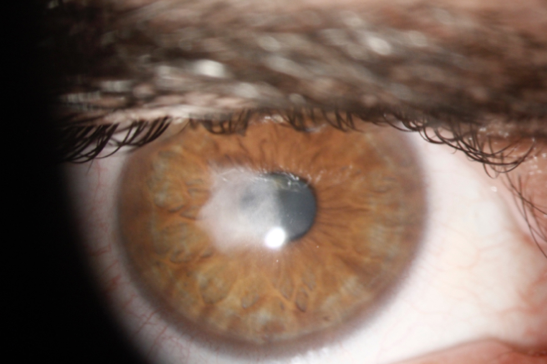 Photograph of a patient's eye showing Corneal Scarring.
