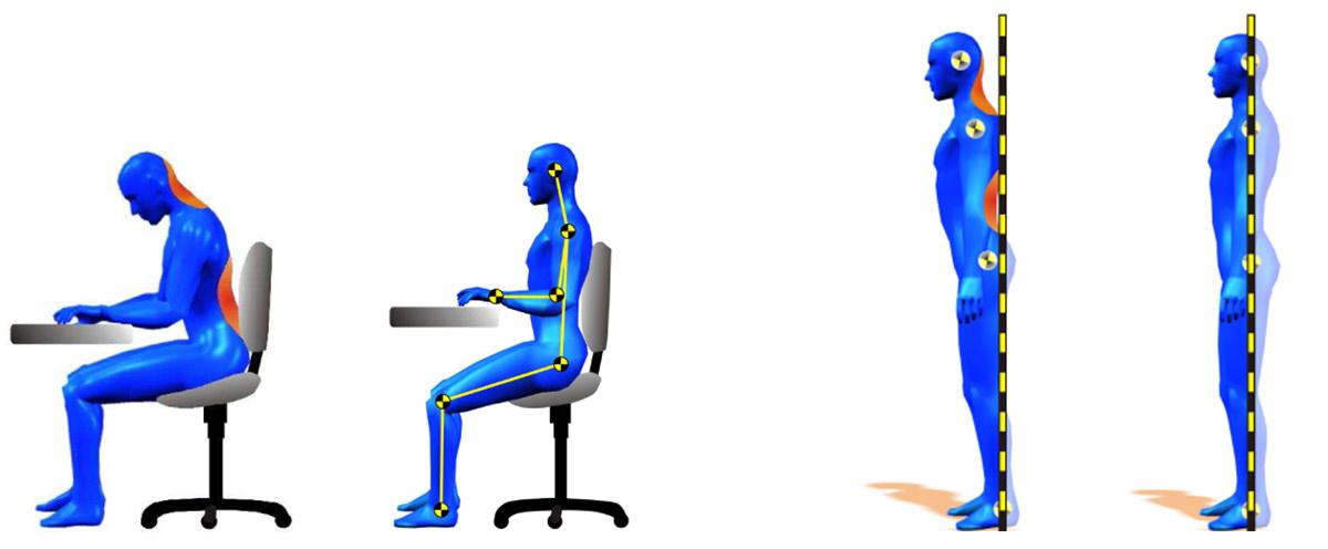 Abb.: Digitale Haltungsanalyse. Fehler beim Sitzen und Stehen werden sichtbar gemacht und der optimalen Haltung gegenübergestellt