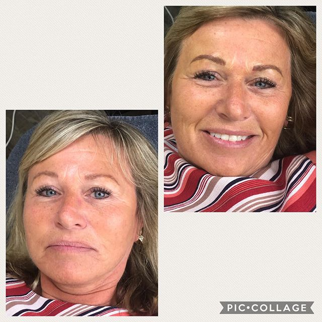 Yearly colour boost! All the smiles 😁 #microblading #pmu #selfie #cocobeautdega