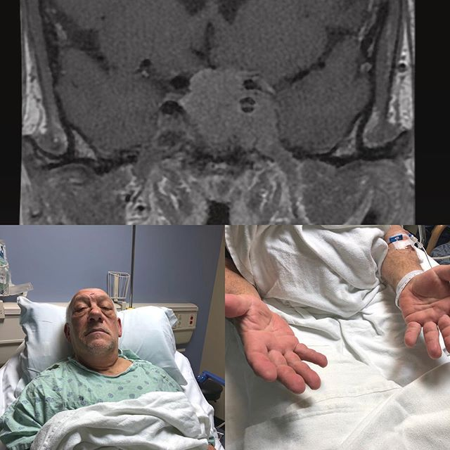 """""""My work gloves don't fit anymore. I can't lose weight. Why am I so tired?"""" Patient presents with a growth hormone secreting #pituitarytumor and features consistent with #acromegaly. He is back at work after successful endoscopic surgery, scarless tumor removal through the nasal cavity!  Posted with SM consent.  #minimallyinvasive #minimallyinvasivesurgery #pituitaryadenoma #rathkescleftcyst #endoscopicsurgery #braintumor #patientsfirst #meded #neurosurgery #brainhealth"""