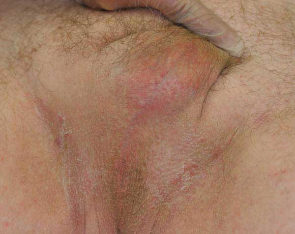 Older patient who had bilateral orchiectomy with scrotal skin removal.