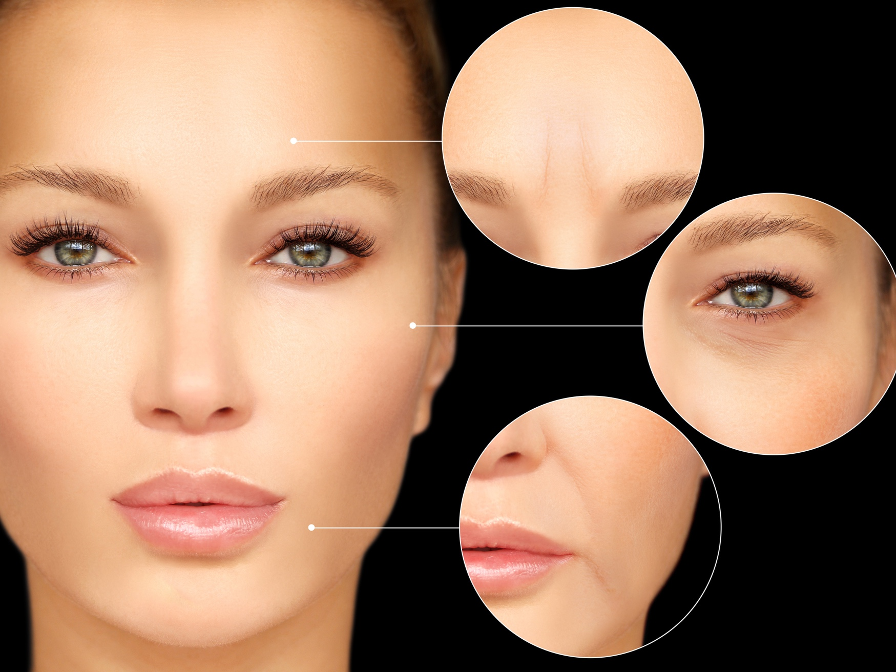 Botox® - It is the most popular non-cosmetic procedure to improving the appearance of lines/wrinkles.