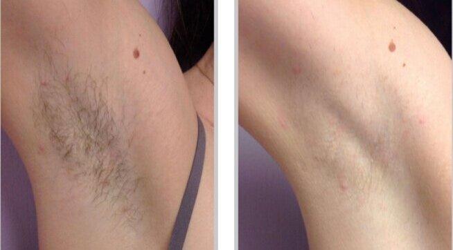 LASER Hair Reduction -