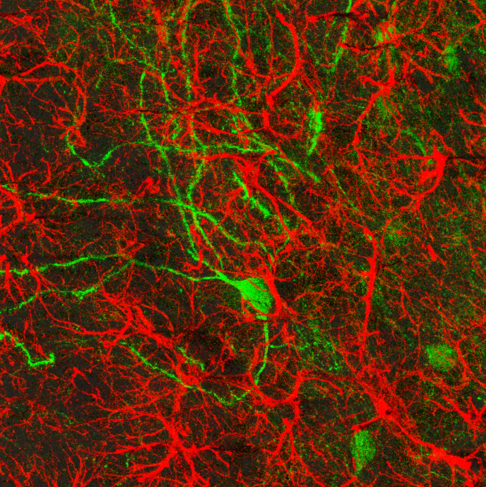 GFAP IHC (red) and viral GFP expression in NAcore MSNs