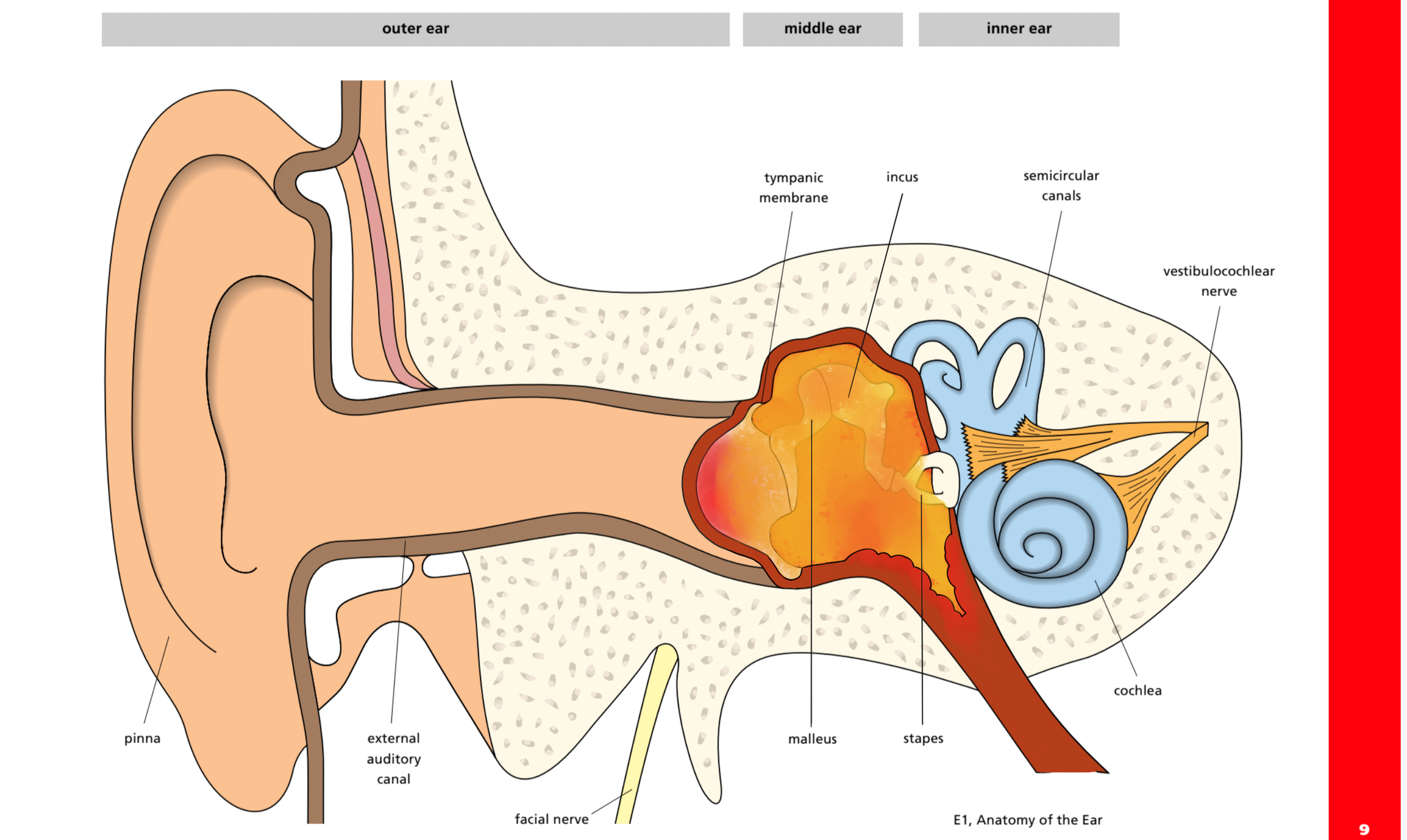 Acute otitis media with a middle ear full of pus distending the ear drum