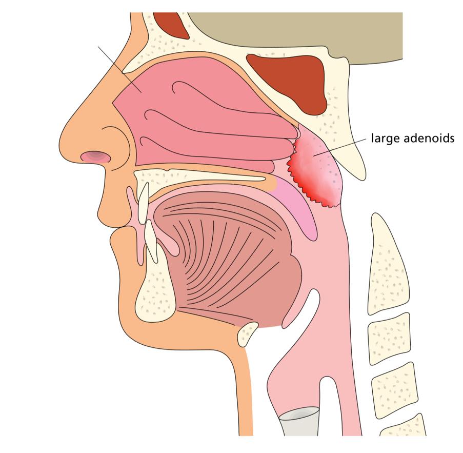large adenoids 2.jpg