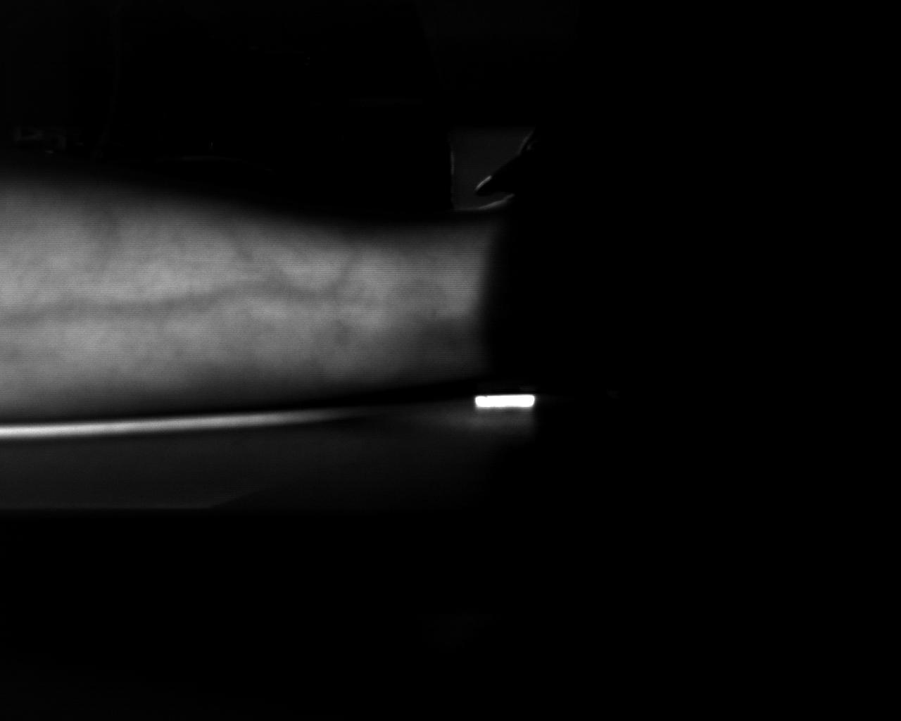 leg-vessel.png
