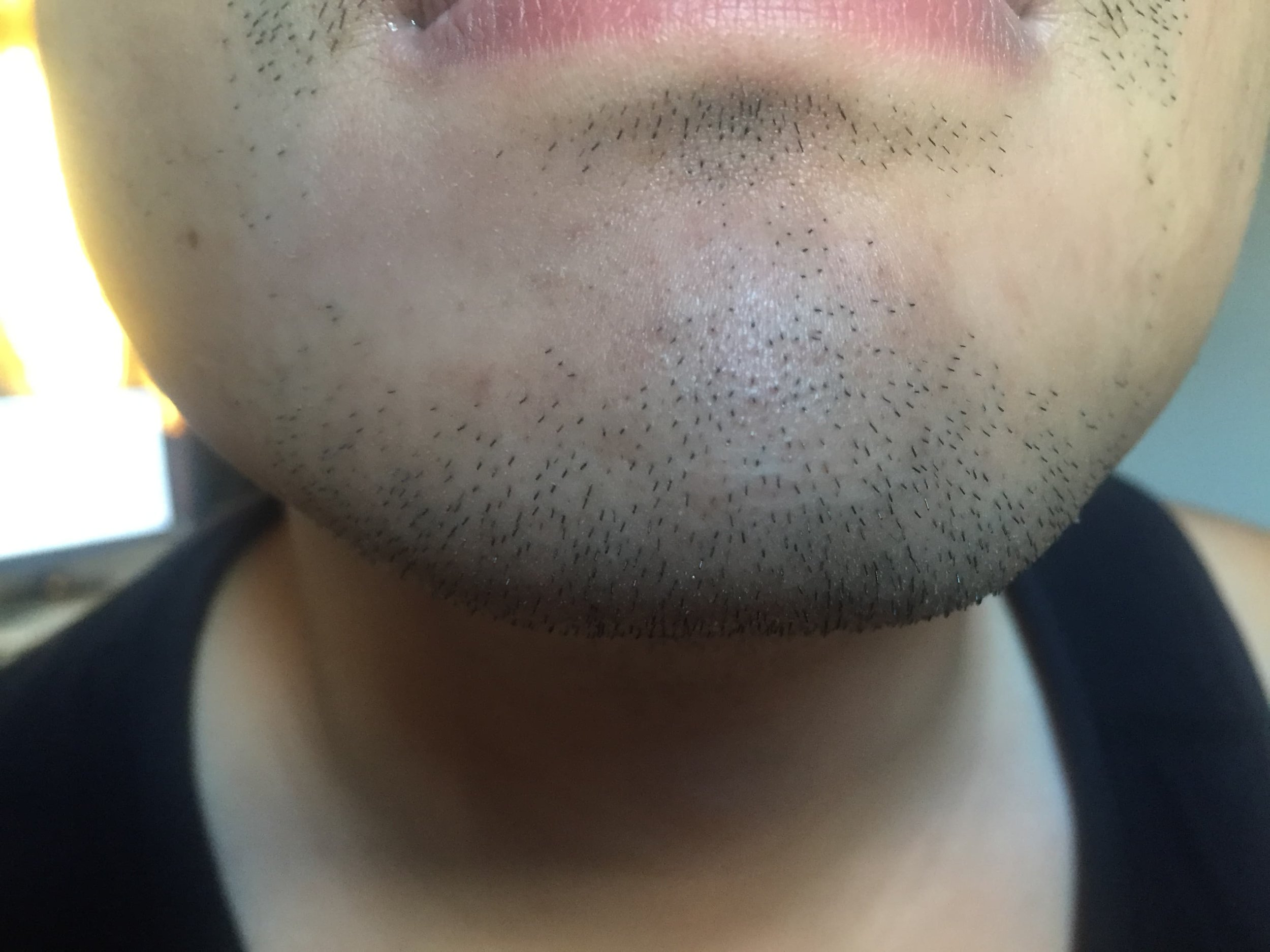 before-shave-2.jpg