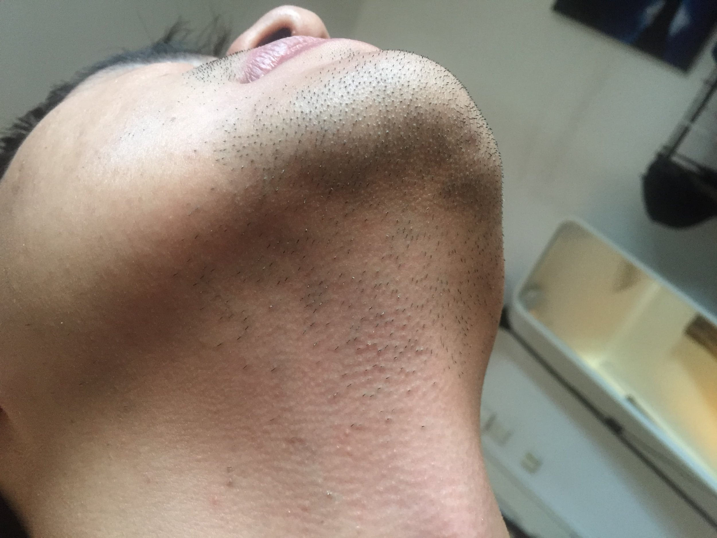 before-shave-3.jpg