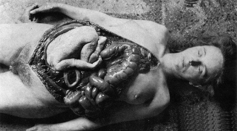 Unit-731-victim.jpg