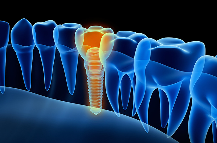 DENTAL IMPLANTS -