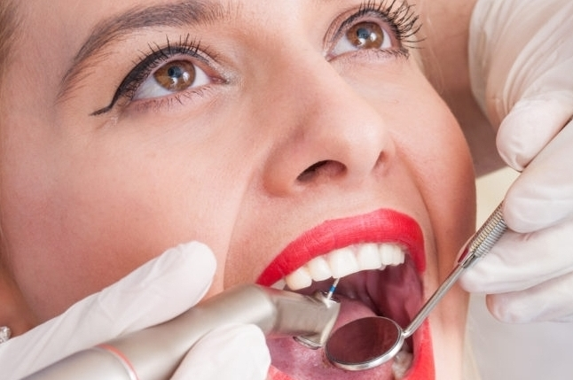 COMPOSITE FILLINGS -