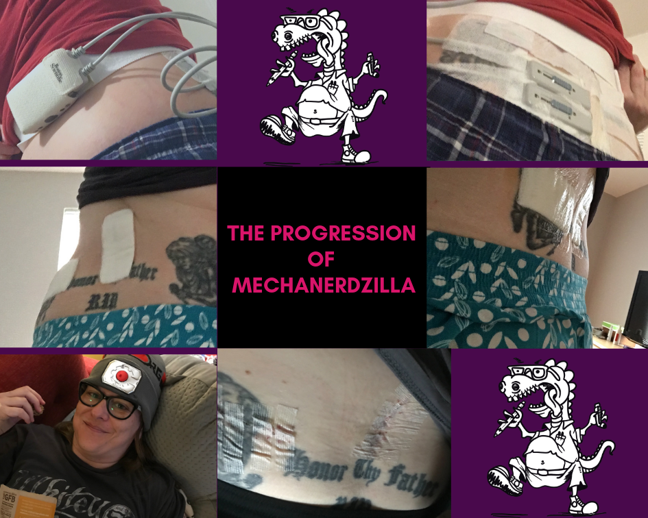 Top left and top right photos are of the temporary implant with the leads protruding from my back and a battery help in a pack on my hip externally. The middle left and middle right photos were taken after the permanent implant was completed, where it really doesn't even look like very much happening back there! Finally, the bottom row shows Mechanerdzilla immediately post-op, sporting my special Cyborg hat and eating granola clusters. The middle bottom photo was taken after my staples were removed.