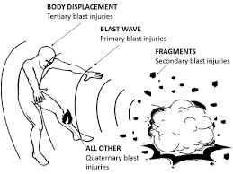 The simplest picture regarding a Blast Wave
