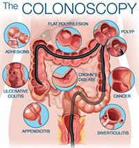 Colonosopy.jpg