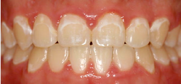 Common example of patient with enamel caries after removal of braces³.