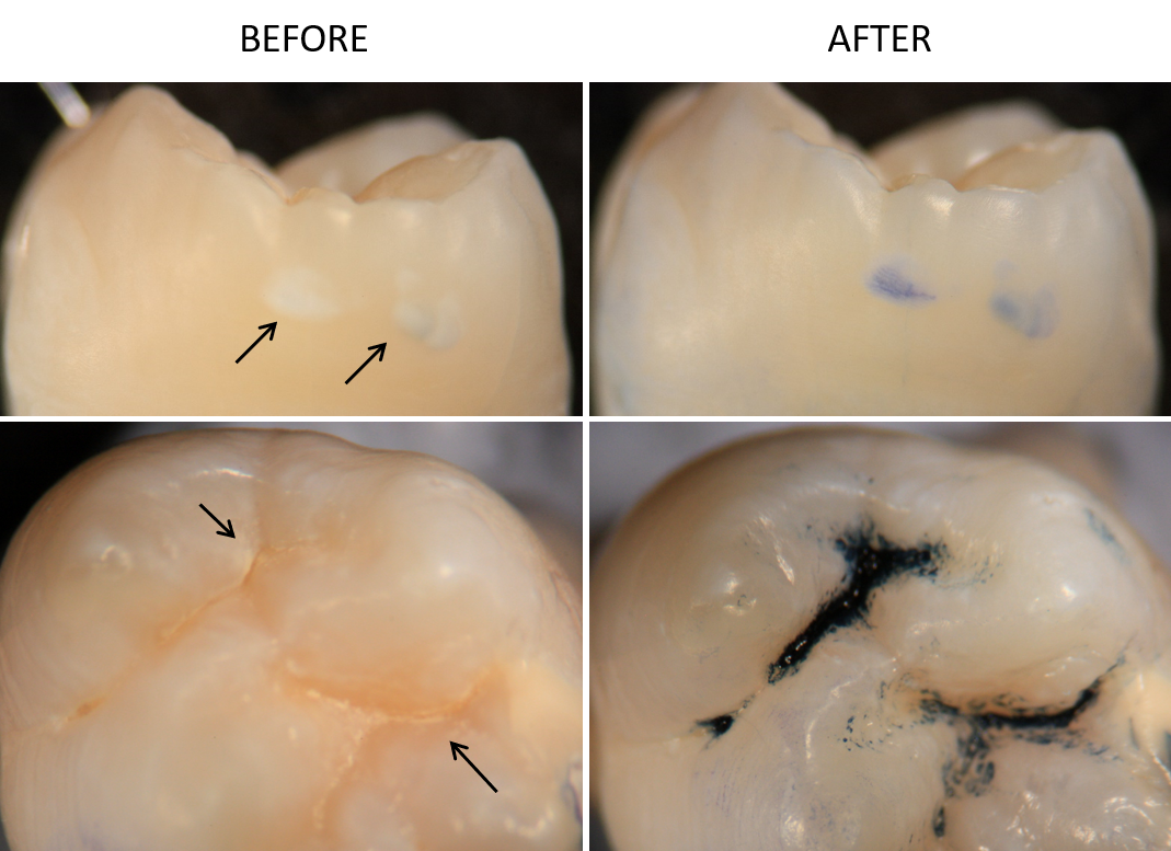 Areas of early caries on human teeth before and after exposure to BlueCheck. Arrows indicate regions of early decay.