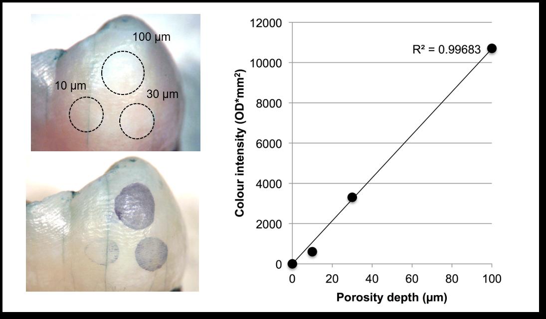BlueCheck detects enamel porosity 10-100 microns in depth.