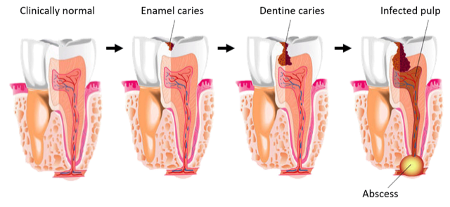 The above highlights the dental caries disease process, noting the cost of treatment increases steadily as progression through each stage.