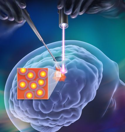 The    Raman Probe    (laser that detects cancer cells) an award-winning tool developed by The Neuro and Polytechnique.