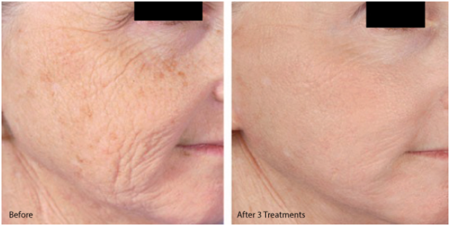 Micro needling results after 3 treatments in 3 months with stem cells