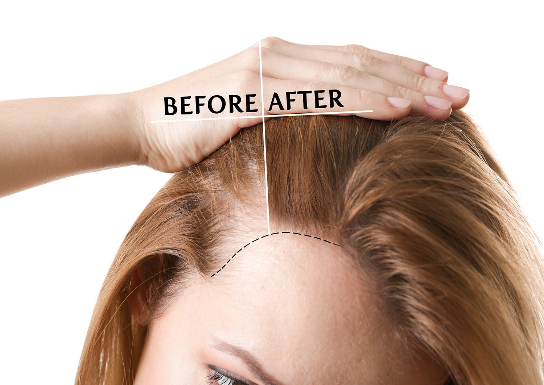 prp hair restoration -